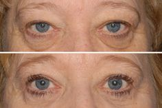 What is blepharoplasty? It is eyelid surgery to correct sagging eyelids, remove fatty pouches beneath the eyes and remove excess skin in the upper eyelids. It can be done in conjunction with other facial surgery procedures such as Laser Skin Resurfacing.