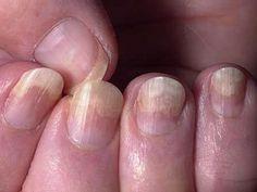 Brittle, Thin, or Lifted Nails - Nail Health: Fingernail Problems Linked to Health Problems - Shape Magazine Toenail Fungus Treatment, Nail Treatment, Nail Problems, Health Problems, Health Remedies, Home Remedies, Health And Nutrition, Health And Wellness, Health Care