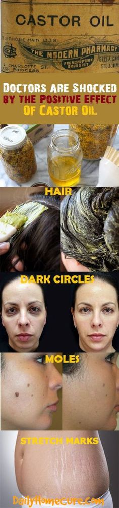 Doctors are Shocked by the Positive Effect of Castor Oil and Baking Soda! More than 20 Health Issues Can be Treated with This Incredible Combination! # castor oil for nasal polyps Castor Oil Uses, Castor Oil For Hair, Natural Cures, Natural Healing, Natural Skin, Herbal Remedies, Health Remedies, Health And Wellness, Health And Beauty