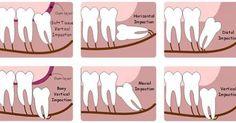 Nha khoa Đăng Lưu được biết đến là địa chỉ đáng tin cậy với đội ngũ bác sỹ nhiều năm kinh nghiệm cùng thiết bị công nghệ hiện đại. Tại đây các bạn sẽ được thăm khám và tư vấn rất nhiều dịch vụ làm đẹp như niềng răng, niềng răng móm như thế nào và một số bệnh lý về răng sẽ được bác sỹ phát hiện và chữa trị sớm. Hàm răng người trưởng thành có 28 chiếc răng, nhưng đến độ tuổi từ 18 – 25 sẽ có thêm bốn chiếc răng hàm mọc nữa.