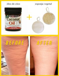 Massage with coconut oil and loofa sponge to eliminate cellulite! I'd add coffee grounds to the coconut oil for the best results!