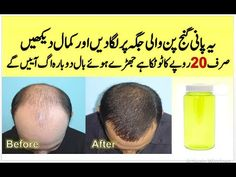 Baldness Treatment For Men And Women Ganjapan Ka Ilaj In Urdu. Here i am telling an amazing home remedy to cure baldness problem at home. Beauty Tips For Skin, Health And Beauty Tips, Health Tips, Health Care, Beauty Hacks, Teddy Bear Quotes, Hair Growth Oil, Health Magazine