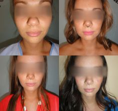 Before/After for Rhinoplasty Rhinoplasty, Chokers, Medical, Fashion, Moda, Fashion Styles, Medicine, Fashion Illustrations, Med School