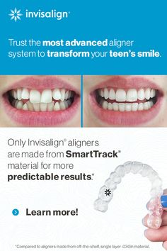 If you have always wanted to whiten your teeth but you did not know what to do, then you have come to the right place. Beauty Care, Beauty Skin, Health And Beauty, Invisalign, Teeth Straightening, Charcoal Teeth Whitening, Adolescents, Teeth Care, White Teeth