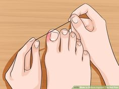 5 Ways to Relieve Ingrown Toe Nail Pain - wikiHow. ❣Julianne McPeters❣ no pin limits 5 Ways to Relieve Ingrown Toe Nail Pain - wikiHow AND before you try these do a little self homework How to Relieve Ingrown Toe Nail Pain. An ingrown toe nail occurs Health Remedies, Home Remedies, Natural Remedies, Herbal Remedies, Health And Beauty Tips, Health Tips, Health And Wellness, Beauty Tricks, Toenail Pain