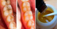 En este artículo vamos a mostrar cómo las máscaras de dientes simples pueden detener el proceso de la caries dental y hacer que los dientes problemáticos sa