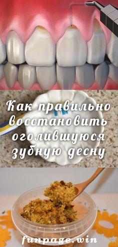 Как правильно восстановить оголившуюся зубную десну Natural Cold Remedies, Herbal Remedies, Wisdom Teeth Removal, Health Savings Account, Teeth Health, Seasonal Allergies, Teeth Care, Meal Prep For The Week, Beauty Recipe