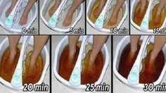 Éliminez tous les selles coincées dans votre estomac et dégonflez votre ventre avec une seule cuillerée de ce remède !