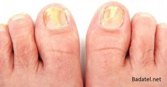 Watch This Video Mind Blowing Home Remedies for Toenail Fungus that Really Work Ideas. Astonishing Home Remedies for Toenail Fungus that Really Work Ideas. Toenail Fungus Treatment, Treating Toenail Fungus, Toenail Fungus Remedies, Foot Soak Recipe, Nail Psoriasis, Toe Fungus, Fungal Nail Infection, Toe Nail Clippers, Wine