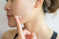 How to make pores disappear with only 1 ingredient naturally - LIFESTYLE INSIDER Acne Skin, Acne Scars, Hormon Yoga, Getting Rid Of Scars, Back Acne Treatment, Look Dark, Types Of Acne, Acne Scar Removal, Acne Breakout