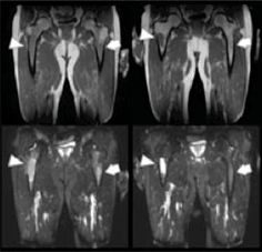 Potential in MRI and PET-CT Lymphoma Cancer Characterization   Image:  T1- and T2-weighted MR images of focal lesions before and after systemic treatment (Photo courtesy of Dr. Jens Hillengass, German Cancer Research Center in Heidelberg, Germany).