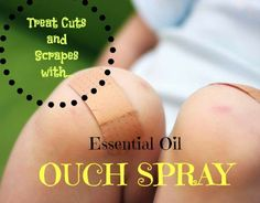 Curly Loves Essential Oils: Essential Oil Ouch Spray. Order from www.sparknaturals.com and use coupon code CURLY to save 10%. Spark Naturals