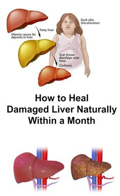 The function of the liver has always been to filter out toxins and eliminate them from the body. Nevertheless, its job has changed over time, and now, it has a much bigger task now than it was even just a century ago. 00001210Comments comments