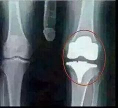 Just got my results from my knee x-ray. Everything is looking good I've been told.