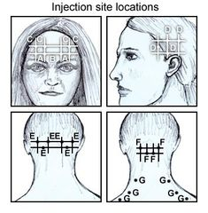 Therapeutic Injections for Pain Management: Types of Therapeutic Injections, Guidelines for Therapeutic Application, Technical Application Botox For Headaches, Botox Migraine, Botox Injection Sites, Botox Injections, Chronic Migraines, Chronic Pain, Tension Headache, Botulinum Toxin, Fibromyalgia