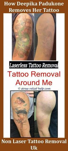 38 Best tattoo removal prices images in 2013 | Tattoo removal prices ...
