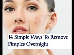 14 Simple Ways To Remove Pimples Overnight