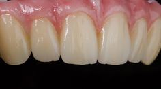 Upper & lower full mouth implant restoration - Chang Jin Bae, Gumi-si, Gyeongsangbuk-do (South Korea)
