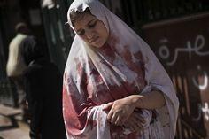 Una donna ferita davanti all'ospedale Dar El Shifa, ad Aleppo, il 20 settembre 2012.