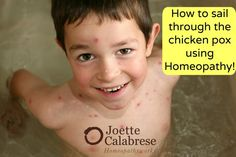 Chicken Pox need not be a concern. Tuck away this method for when the Pox come to your house.