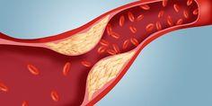 Como limpar o colesterol da corrente sanguínea sem medicamentos e de forma natural! Regime Anti Cholesterol, Low Cholesterol Diet, Cholesterol Levels, Keeping Healthy, Healthy Tips, How To Stay Healthy, Healthy Heart, Healthy Recipes, Natural Cures