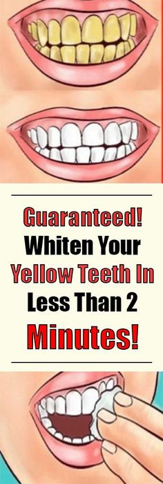 Healthy and white teeth are something that everybody desires. But to achieve this, it can take a lot of effort and time. You can go to the dentists for a whitening procedure, but it will cost you a lot, plus it`s not that healthy for your teeth. Teeth Whitening Remedies, Natural Teeth Whitening, Whitening Kit, Homemade Teeth Whitening, Teeth Whiting At Home, Remedies For Tooth Ache, Receding Gums, Stained Teeth, Healthy Teeth