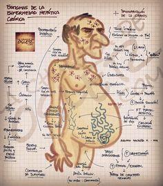Estigmas de la enfermedad hepática crónica  Fuente: lachuletadeosler.com