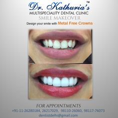 Design your Smile with Metal Free Crowns. #SmileMakeover
