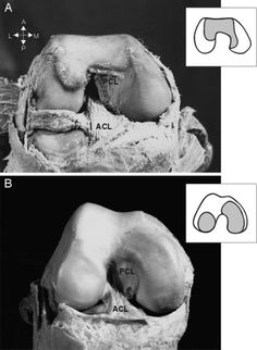 The ACL is larger in a chimp (top) than in a human.