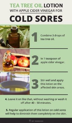 Tea Tree Oil Remedy for Cold Sores - 11 Quick and Natural DIY Cold Sore Remedies