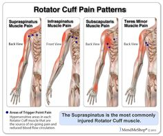 How do you treat pain in the arm muscle?