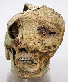 Skeleton subject with bulky tumors of the skull