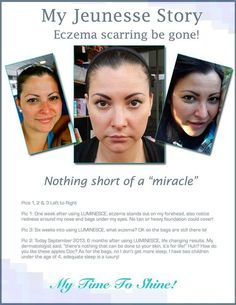 Luminesce - use the whole skincare package to love the skin you are in. Based on adult stem cell Nobel Prize award nominee research, it is one of the best.