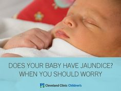 What is #jaundice and when should you worry? #parenting
