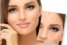 How can I control adult acne? Stopping Birth Control, Im Fabulous, Hydrating Serum, Hormonal Acne, Wash Your Face, Regular Exercise, Anti Aging Skin Care, Organic Skin Care, Active Ingredient
