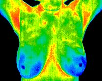 Breast Thermography is a 15 minute non invasive test of physiology. It is a valuable procedure for alerting your doctor to changes that can indicate early stage breast disease. A certified technician takes the images and then the images are read by a certified and licensed medical Thermomologist