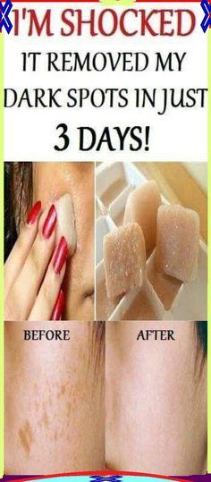 I�m SHOCKED It Removed My Dark Spots In 3 Days, Magic Remedy