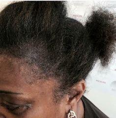Scalp Micropigmentation After http://www.3dvolumelash.com/scalp-treatment-fayetteville-nc/lh7yynqeie1s8wysv76y555w8zq7dm