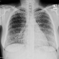 Sarcoïdose Stade IV : Fibrose pulmonaire