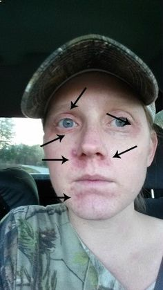 Psoriasis Free - Psoriasis on Face/Eyes. No makeup and on a good psoriasis day. - Professors Predicted I Would Die With Psoriasis. But Contrarily to their Prediction, I Cured Psoriasis Easily, Permanently & In Just 3 Days. I'll Show You! Psoriasis Rash, What Is Psoriasis, Psoriasis On Face, Psoriasis Arthritis, Psoriasis Diet, Plaque Psoriasis, Psoriasis Remedies, Psoriasis Symptoms, Psoriasis Treatment Cream