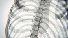 X-ray Body in Motion - Yoga