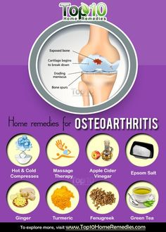 Home Remedies for Osteoarthritis Prev of Osteoarthritis, also known as degenerative joint disease or osteoarthrosis, is the most common form of arthritis. It occurs due to the breakdown of cartilage in joints, which causes the bones to rub agai Rheumatoid Arthritis Treatment, Arthritis Remedies, Arthritis Symptoms, Health Remedies, Natural Remedies For Osteoarthritis, Arthritis Exercises, Natural Cure For Arthritis, Yoga For Arthritis, Types Of Arthritis