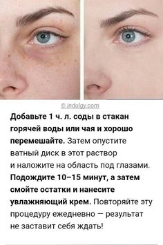 Home remedy to reduce dark circles under eyes Reduce Dark Circles, Dark Circles Under Eyes, Eye Treatment, Skin Treatments, Face Care, Body Care, Dark Spot Remover For Face, Face Yoga, Microblading Eyebrows