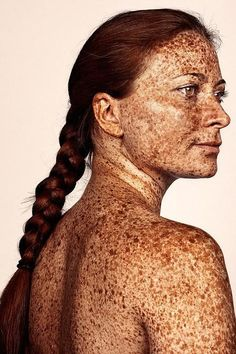 Freckles are often found on people with fair complexions, such as people with red hair. Because people with paler skin generally have less melanin, which is the pigment that gives skin, hair, and eyes their color. Pretty People, Beautiful People, Beautiful Women, Vitiligo Treatment, Beautiful Freckles, Freckle Face, Unique Faces, Interesting Faces, Redheads