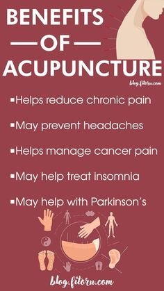 Holistic Techniques And Strategies For holistic health practitioner articles Acupuncture Benefits, Acupuncture Points, Acupressure Points, Happy Sunshine, Motivational Quotes, Inspirational Quotes, Homeopathic Medicine, Traditional Chinese Medicine, Holistic Healing