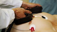 Jeder kann einen Laiendefibrillator bedienen.Zunächst muss die Kleidung vom Brustkorb des Betroffenen entfernt werden. Dort werden selbstklebende Elektroden angebracht. Mit ihrer Hilfe misst der Defibrillator alle wichtigen Körperfunktionen wie den Herzrhythmus und führt eine vollautomatische Analyse durch. Bei Bedarf empfiehlt das Gerät die Defibrillation: Auf Knopfdruck gibt das Gerät einen Stromstoß von circa 750 Volt ab, dadurch zieht sich die Herzmuskulatur zusammen und löst einen…