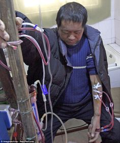 Chinese man keeps himself alive for 13 years with HOMEMADE dialysis machine Three times a week, Hu Songwen sits on a small toilet in his home in a rural east China town and fires up his homemade dialysis machine. Hu, who suffers from kidney disease, made it from kitchen utensils and old medical instruments after he could no long afford hospital fees. 'The cost for each home treatment is only 60 yuan (£6), which is 12 per cent of the hospital charge for dialysis,' Hu said.