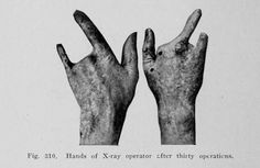 From Howard R. Raper's Elementary and dental radiography, 1913......I'm glad dental xrays have improved for us assistants!