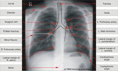 labeled chest x ray - Google Search