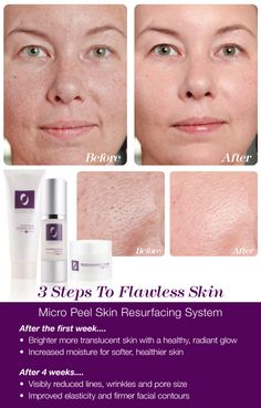 The interactive 3 step process works gradually over time to insure zero irritation making this treatment perfect for all skin types, even sensitive skin that is typically unable to use peels or traditional AHA's.  Use the Micro Peel Skin Resurfacing System every two to three months or more often depending our your skin type.  It will completely renew your skin while maximizing the benefits from your anti-aging treatment products.  You'll love your skin!  Only @ Osmotics.com